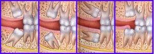 siso-fineodonto-cirurgia